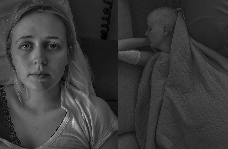 «Ты будешь в порядке»: фотограф запечатлел жену и ее борьбу с раком