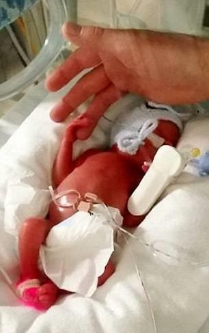 Когда он родился на 25-ой неделе, врачи не давали ему шансов выжить. Но произошло настоящее чудо...