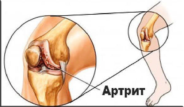 Как победить артрит?
