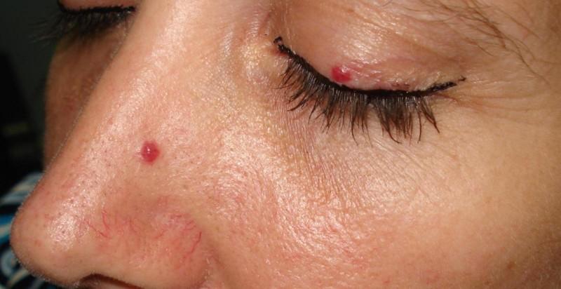 Чем они опасны красные точки на теле?