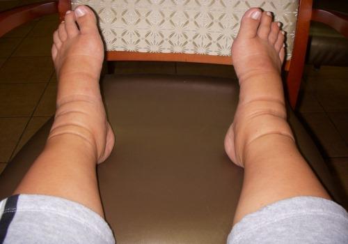 После родов ноги отекают почему