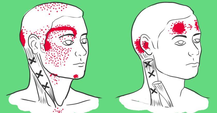 Нехватка этих продуктов вызывает головную боль. Продукты против мигрени