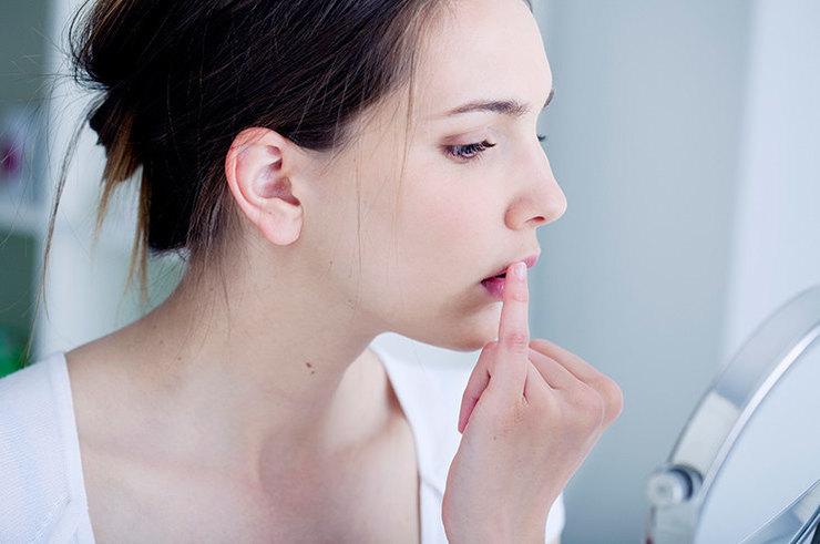 Всё, что нужно знать о герпесе на губах