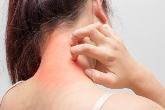 Дерматиты. Народные методы лечения дерматита