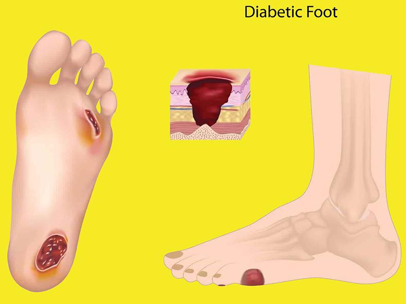 Как развивается диабетическая стопа