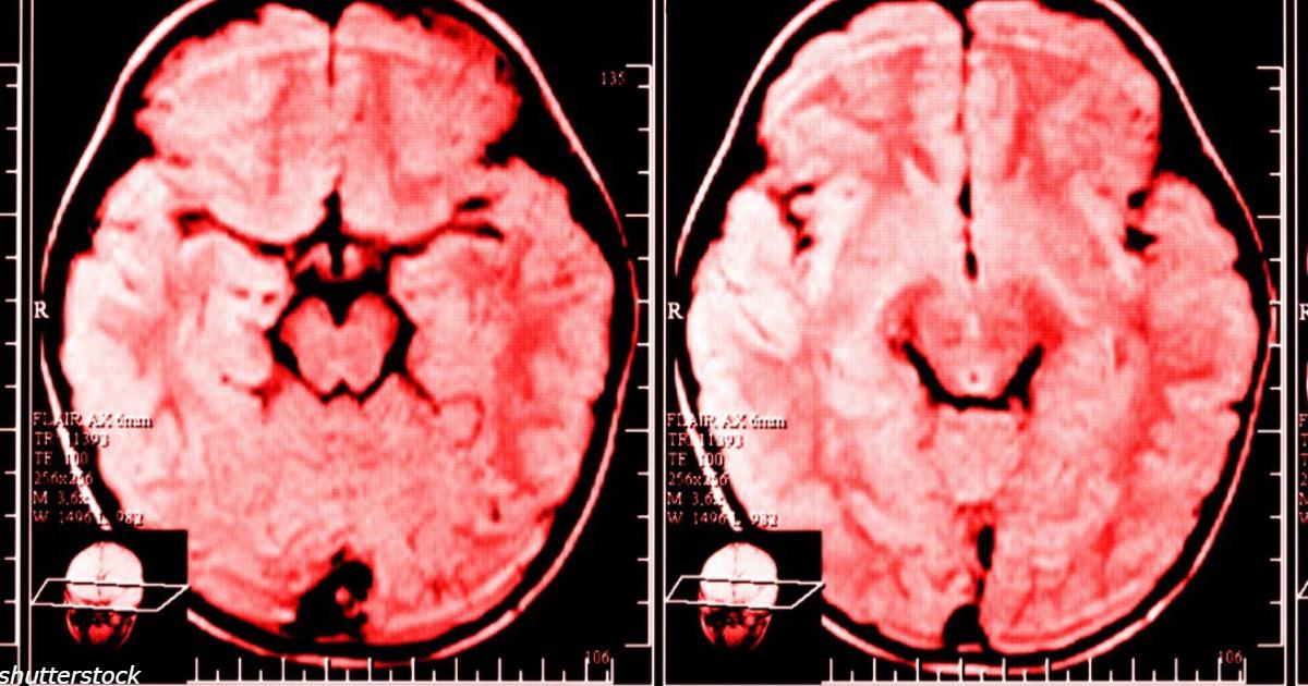 Ежедневные жалобы менÑÑŽÑ' ваш мозг к худшему, говорÑÑ' ученые