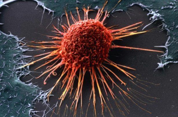 Учёные назвали признак скорого появления рака