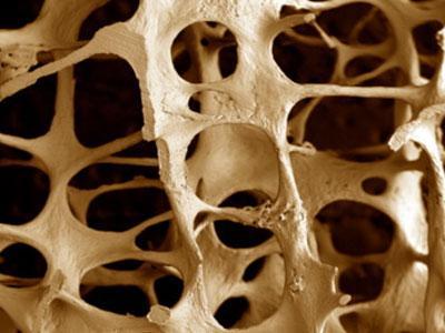 Остеопороз. Почему заболевание назвали остеопороз?