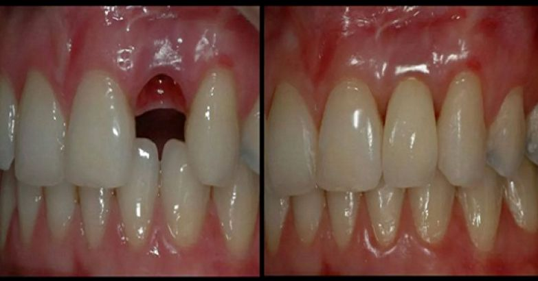 Вырастить новые зубы за 9 недель - миссия выполнима