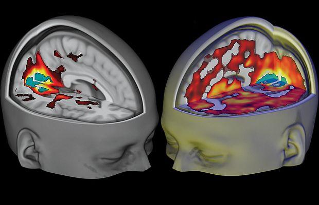 Учёные обнаружили третье состояние сознания