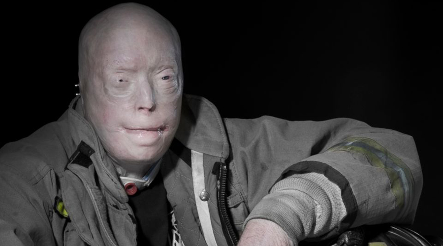 Патрик Хардисон: история человека без лица
