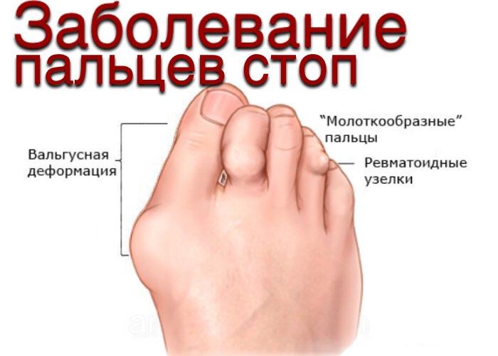 Заболевания пальцев ног
