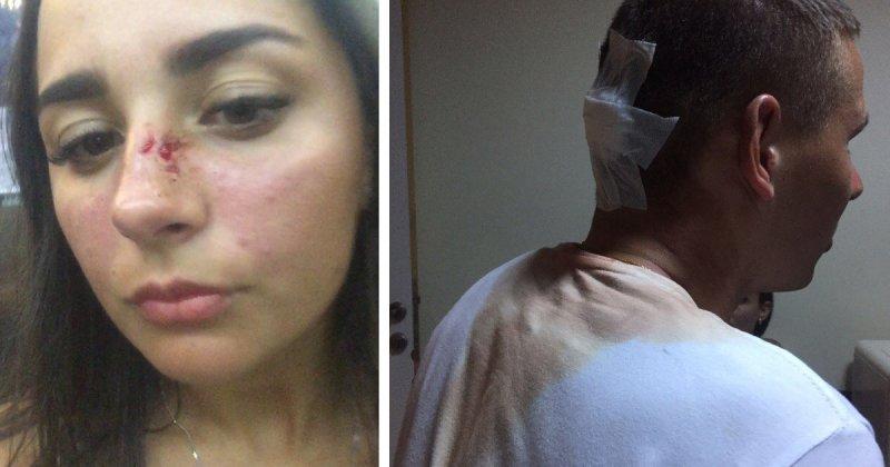 Недовольных сервисом российских туристов избили в турецком отеле