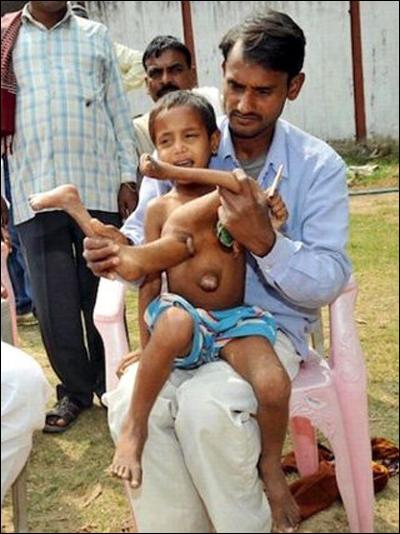 Необычному индийскому мальчику удалили лишние руки и ноги