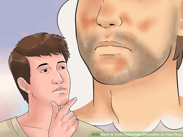 Картинки по запроÑу seborrheic-dermatitis