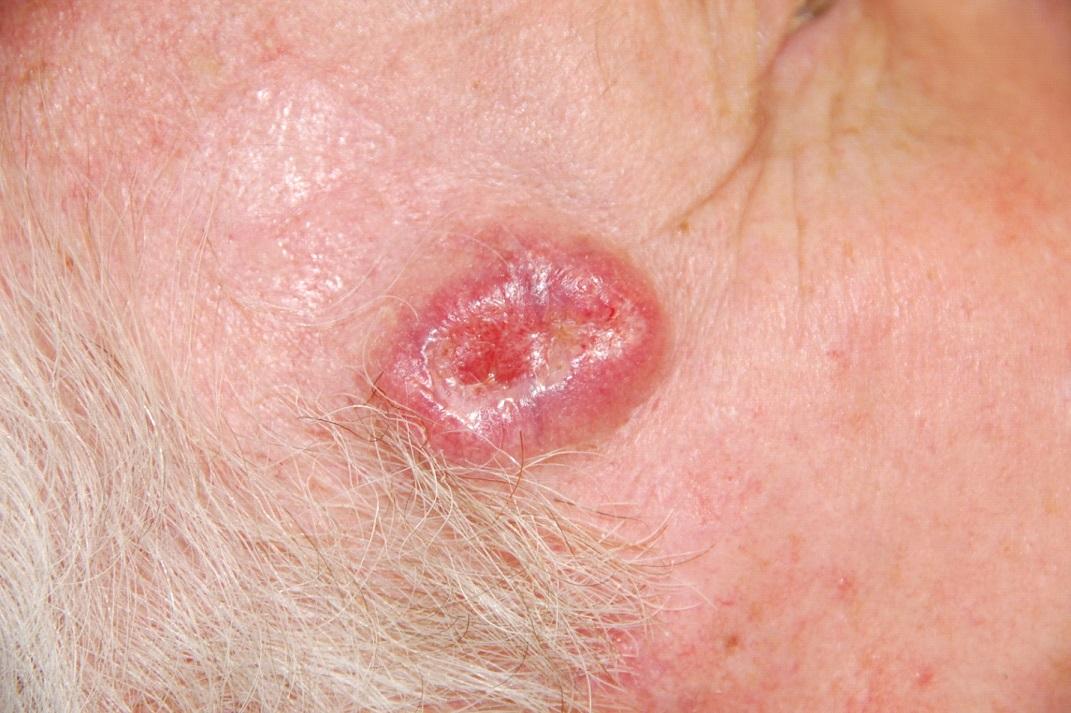 Если у вас есть эти две родинки, вы должны знать, что одна из них — потенциальный рак кожи