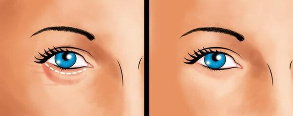 Как ухаживать за кожей вокруг глаз: 4 подсказки, для уменьшения отёков и темных кругов