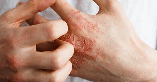 8 симптомов заболеваний, которые проявляются на ваших руках