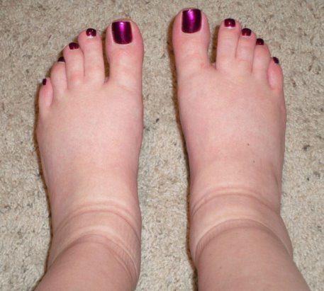 Что вызывает отёчность ног