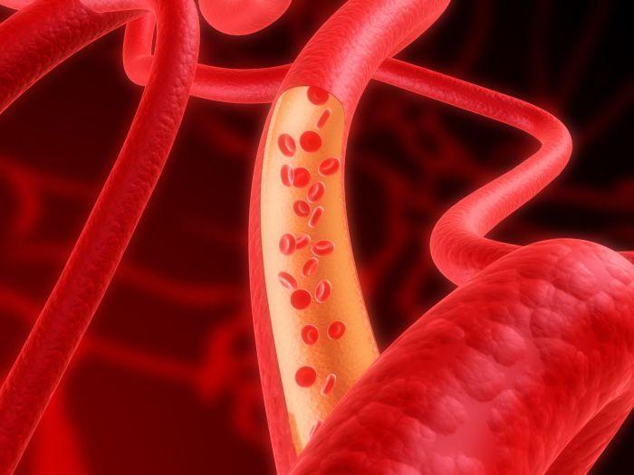 ХИЖИНА ЗДОРОВЬЯ. Что делать при высоком гемоглобине