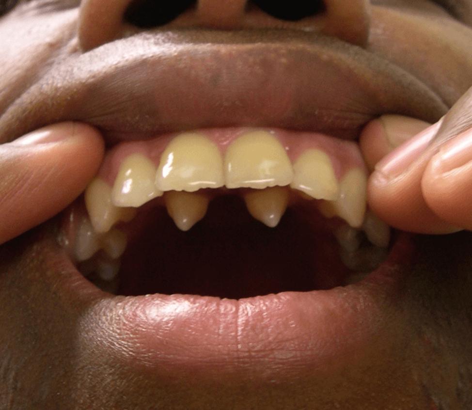 Зубы которые растут на небе