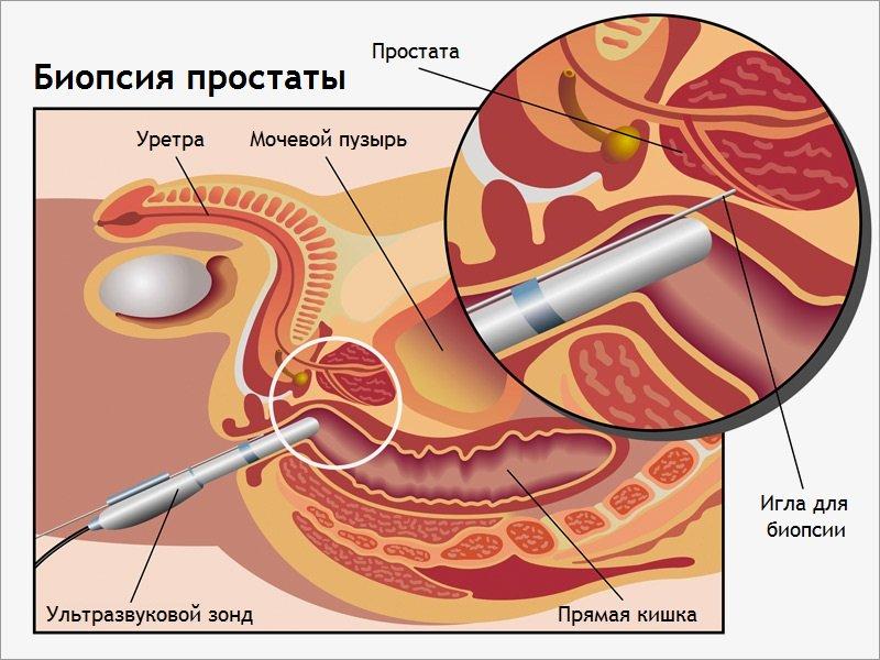 Порно картинки бионция, совсем не умею сосать член