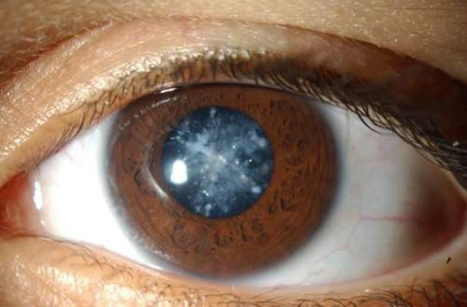 Все, что вам нужно знать о скрытых симптомах катаракты!