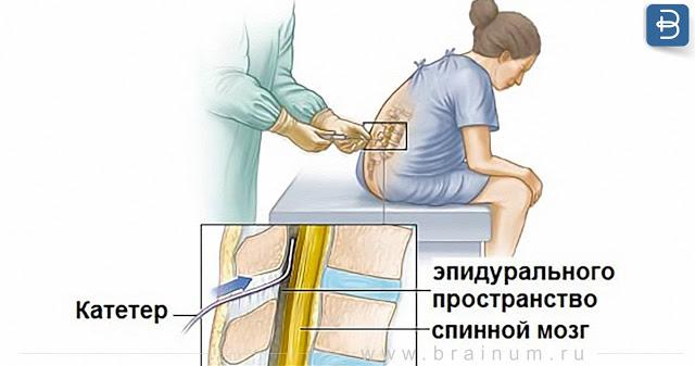 Ужасающие последствия после анестезии во время кесарево сечения. То, о чем молчат все врачи