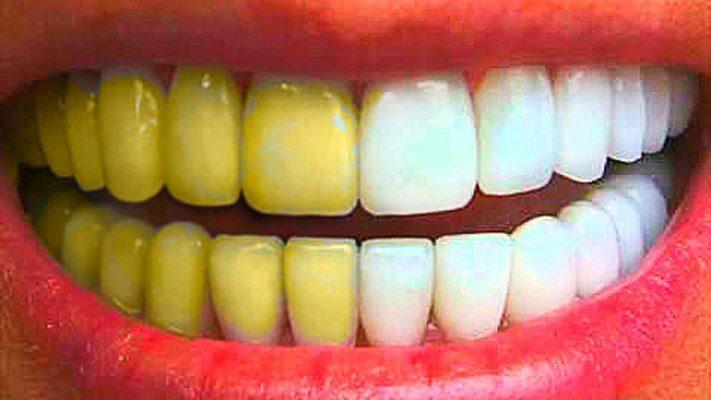 Как отбелить зубы и не нанести им вреда?