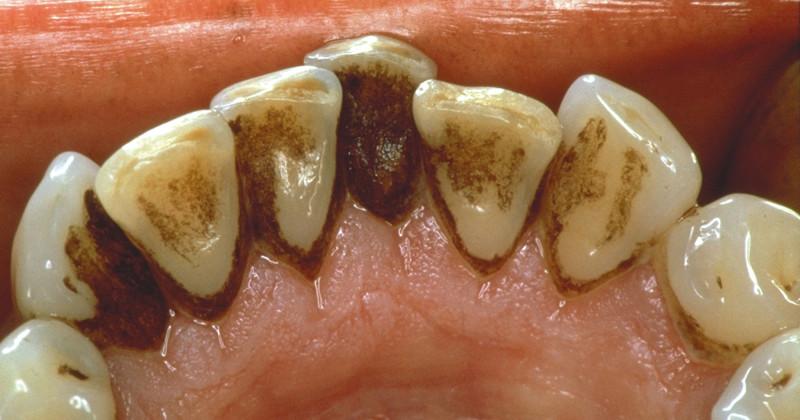 Как без помощи стоматолога можно удалить зубной налёт? зубной налёт, зубы, полезный пост, самолечение, стоматолог, стоматология