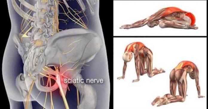 Лечение ишиаса, поясницы и боли в тазобедренном суставе с помощью этих 11 растяжек грушевидной мышцы