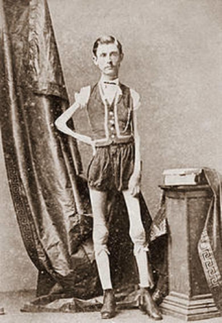 Исаак В. Спрэг . Известный больше как человек-скелет интересное, прошлое, фото, цирк