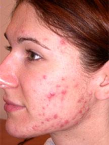 Применение биологически активных добавок в лечении Угревой болезни (Акне).