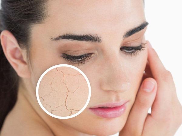 Как правильно ухаживать за сухой кожей
