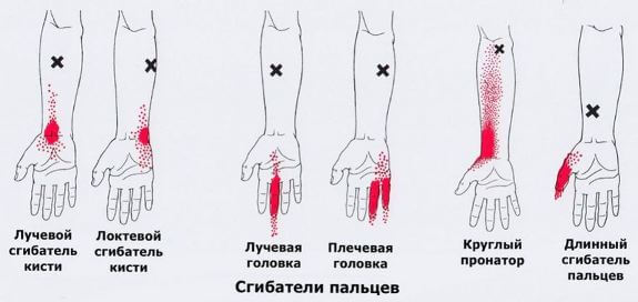болит левая рука и левая нога