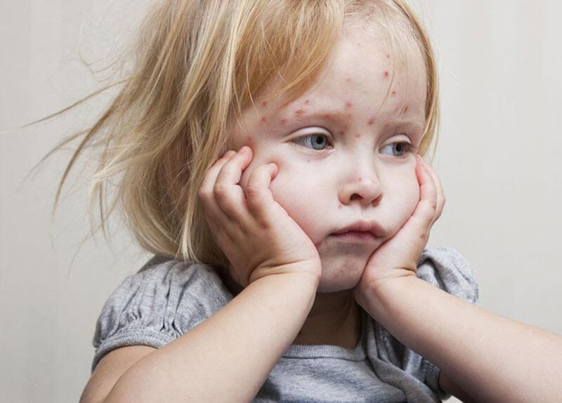 Почему болеют дети