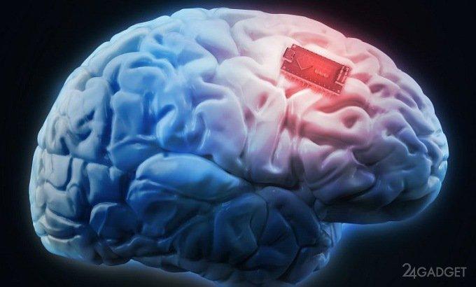 Человеку впервые улучшили память мозговым имплантом