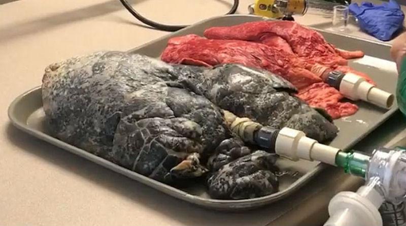 Медсестра показала на видео разницу между: легкие курильщика против легких здорового человека