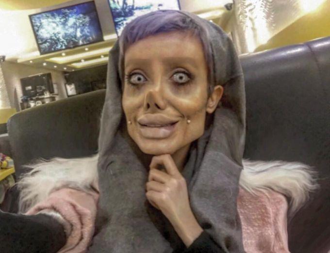 Девушка из Ирана сделала 50 операций, лишь бы быть похожей на своего кумира Анджелину Джоли.