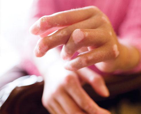 Народные рецепты лечения склеродермии