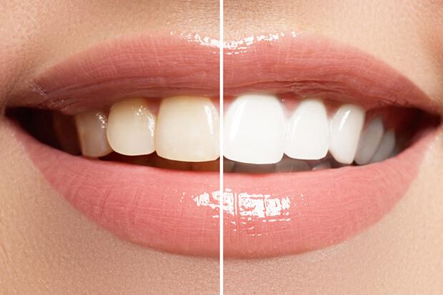 Отбеливание зубов и укрепление зубной эмали