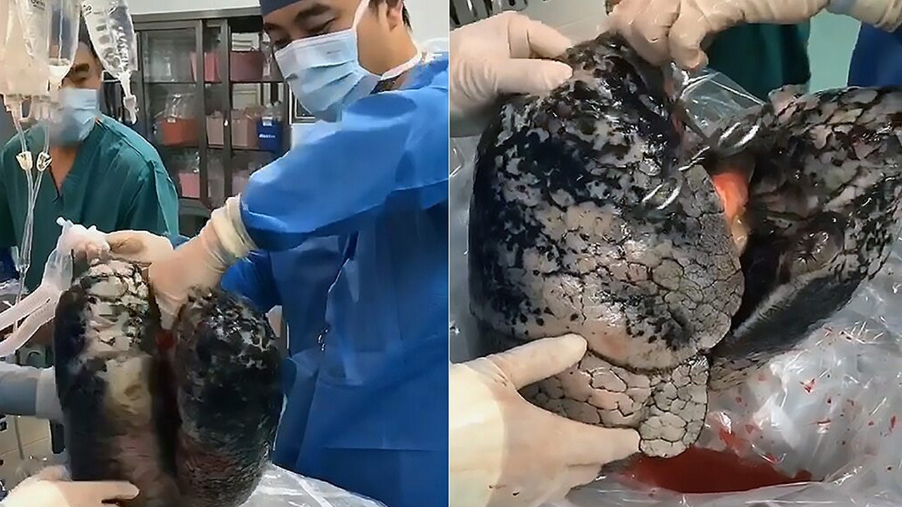 charcoaled lungs