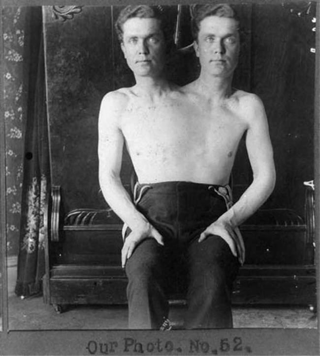 Двухголовый человек интересное, прошлое, фото, цирк