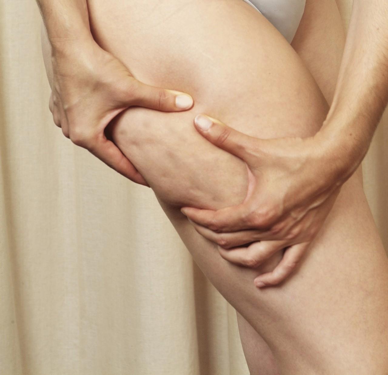 Как убрать целлюлит? Антицеллюлитное обертывание с уксусным тестом.