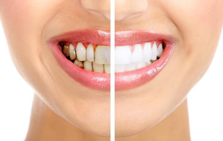 Вот как избавиться от зубного камня дома и без последствий
