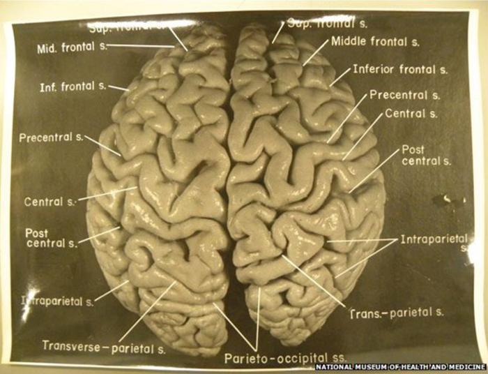 Харви разделил мозг Эйнштейна на 240 частей.