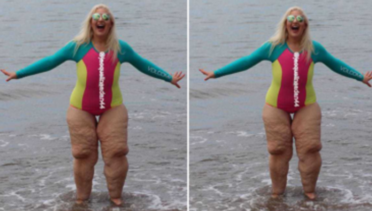 Люди высмеяли ее ноги, но она показала фото ближе и закрыла им рот