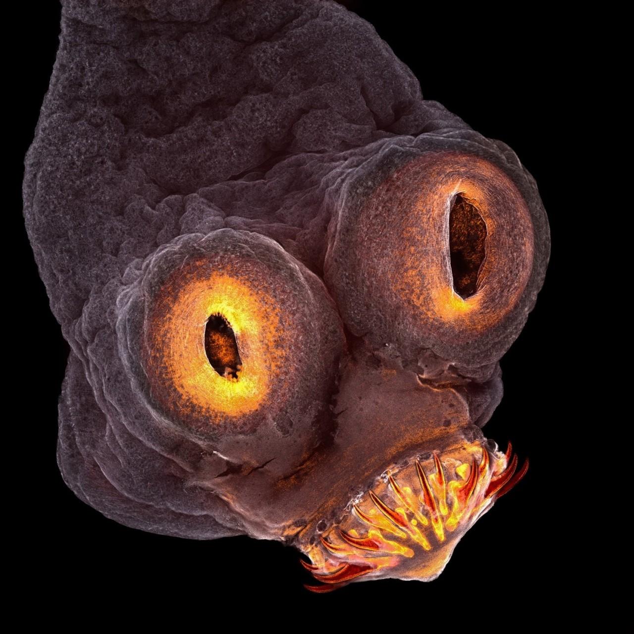 Четвертое место — Свиной цепень (Taenia solium). Фото: Teresa Zgoda, Рочестер, штат Нью-Йорк (США) Nikon Small World's, конкурс, красота, наука, под микроскопом, удивительно