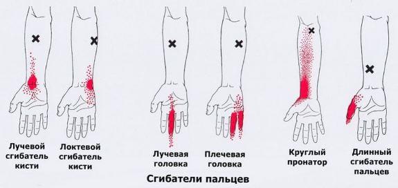 боли в лучезапястном суставе кисти и пальцах