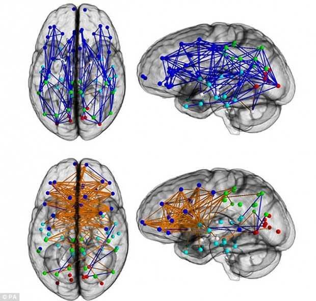 razlichia-mozg-jm-1.jpg